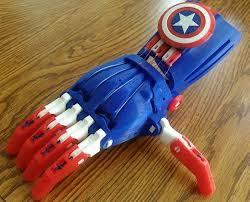 david prosthetic